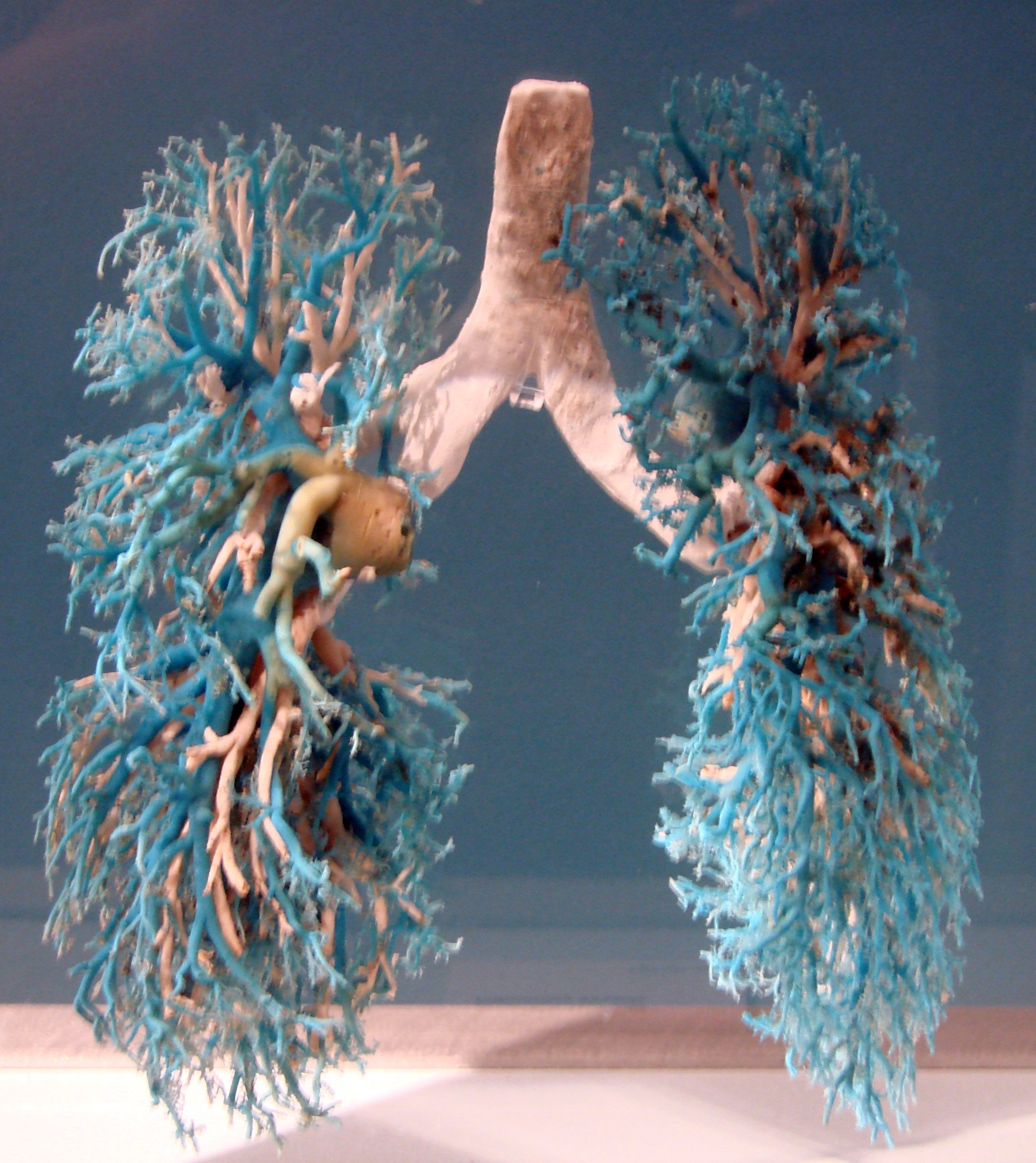 Real Human Body Lungs