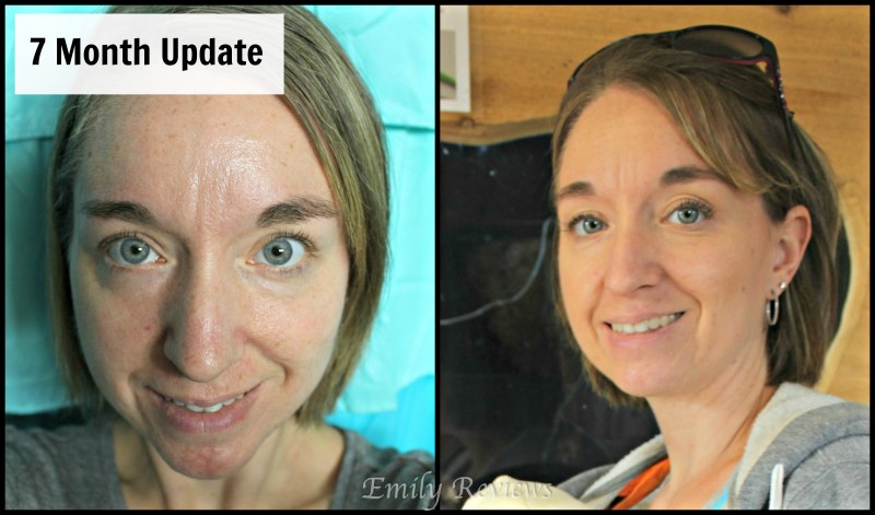 Rodan + Fields {UnBlemish Line} 7 Month Update Post SPOILER: I LOVE R+F!