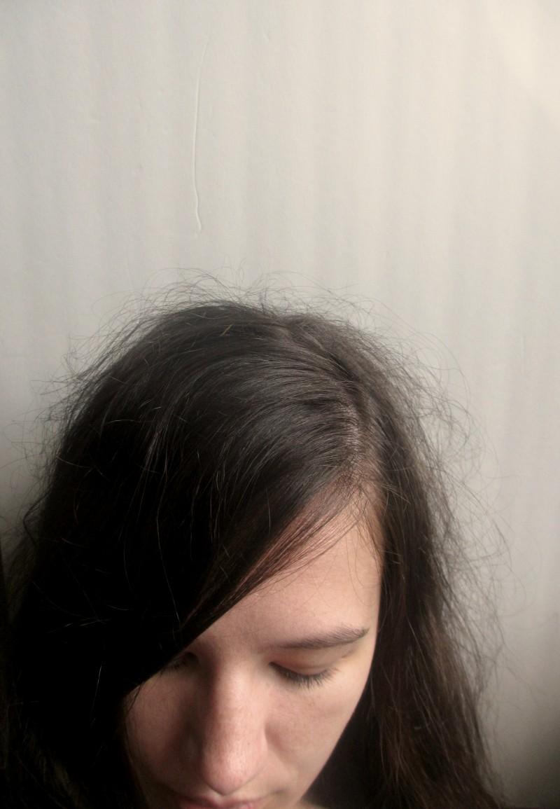 Frizzy damaged hair